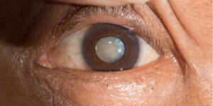 лікування катаракти в Полтаві