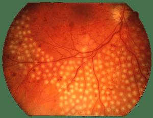 как проходит Лазерное лечение сетчатки глаза