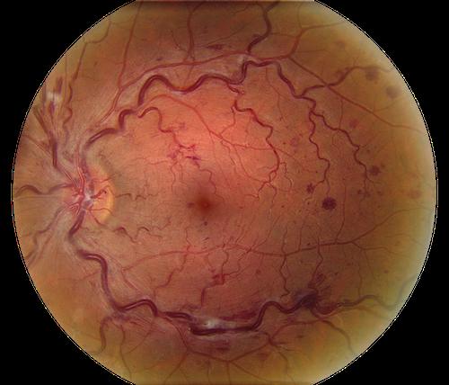 Лечение тромбоз вен сетчатки глаза