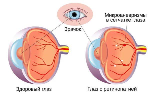 симптоми Діабетична ретинопатія