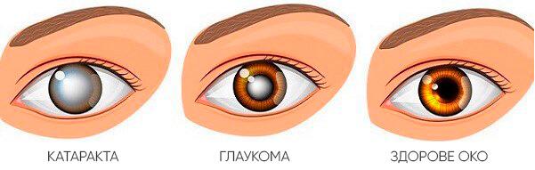 як виглядає глаукома?