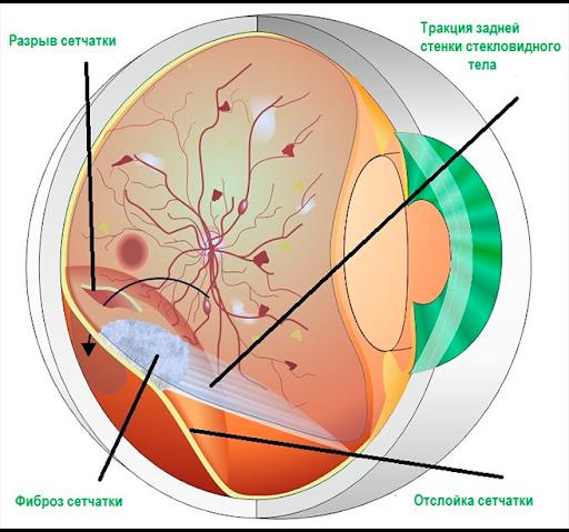 Лікування епіретінальних фіброзу